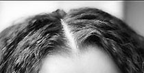 Облысение - выпадение волос у женщин и мужчин, алопеция