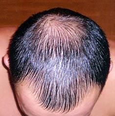 Селен против выпадения волос отзывы